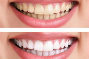 Teeth Whitening | Dr. Jennings | Dentist Ozark, AL