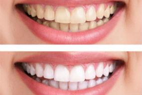 Teeth Whitening | Dr. Jennings | Dentist Ozark, AL
