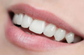 White Fillings Available | Dr. Jennings | Dentist Ozark, AL