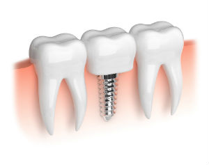 Dental Implants | Dentist Ozark, AL | Dr. Jennings